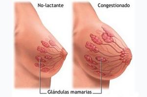 la-ingurgitacion-mamaria
